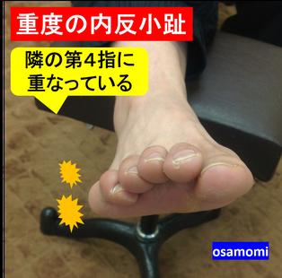 内反小趾は腰痛を誘因。昭島市のオサモミ整体院。