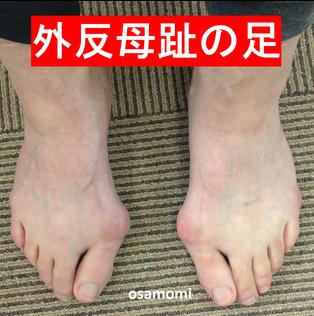 外反母趾は、昭島市のオサモミ整体院。拝島駅から無料送迎サービス。