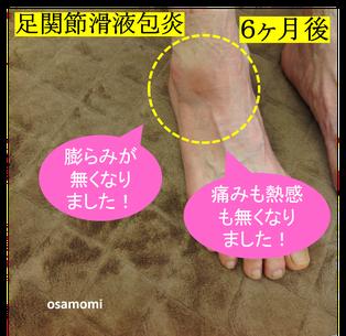 オサモミ整体院 足首痛 足関節滑液包炎