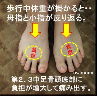 中足骨頭部痛は、昭島市のオサモミ整体院。拝島駅から無料送迎サービス。