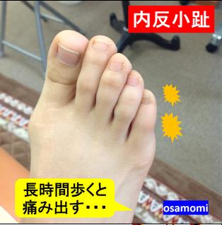 内反小趾のケアは、昭島市のオサモミ整体院。