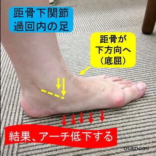 足底腱膜炎・骨棘 昭島市のオサモミ整体院。拝島駅から無料送迎サービス。