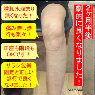 変形性膝関節症ケアのスペシャリスト。昭島市のオサモミ整体院。拝島駅から無料送迎サービス。