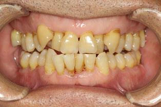 歯周病治療が難しい歯並び