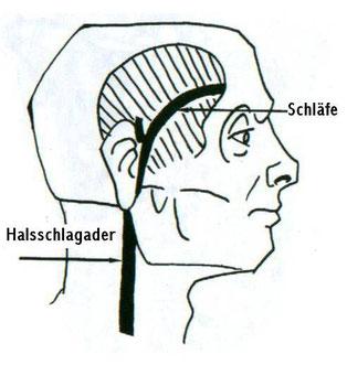 Halsschlagader gerissen