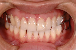 審美歯科治療後