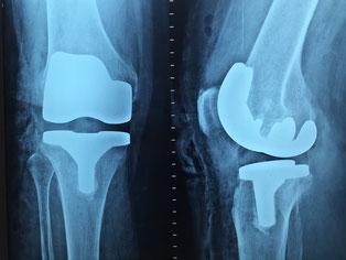 Markstarの豆知識 変形性膝関節症