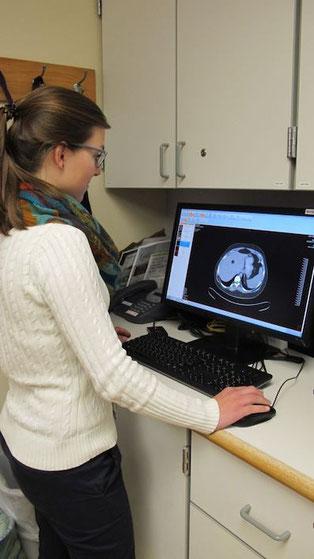 Hannah Schäfer beim Studieren von MRT-Bildern. Bild: Melody Gullemann