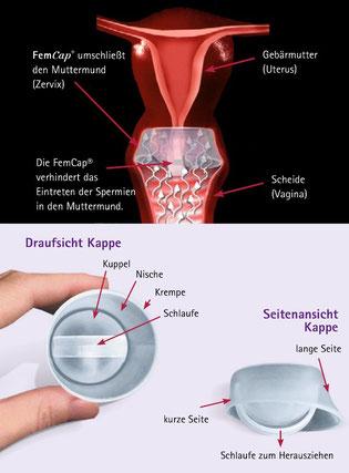 cuptime Verhütung Portiokappe FemCap Barriere Verhütung Verhütungsgel Diaphragma