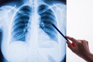 Radiologie en AI