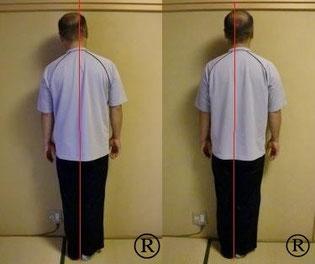 しんそう福井武生では、肩の痛みも身体の歪みを調整することで改善していきます。