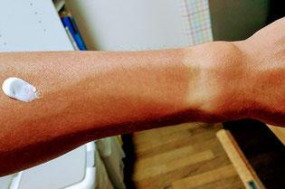 日焼けした前腕部