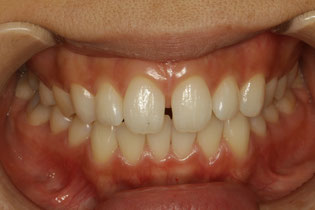 ダイレクトボンド法による隙っ歯の治療