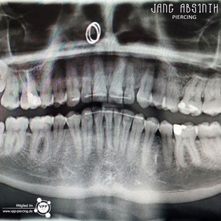 Röntgen Aufnahme von einem Nasenflügelpiercing