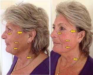 Karin Foschi, aus Wels, nach nur einer Behandlung. Klicke auf das Bild, um es zu vergrößern!
