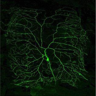 写真 「脳細胞」