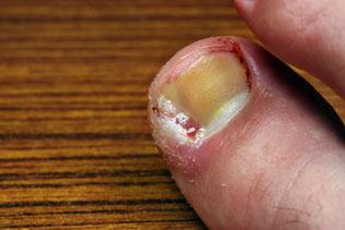 Hilfe bei eingewachsenen Fußnägeln