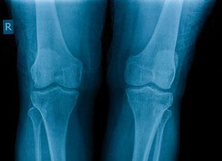 Diagnose an Knochen und Gelenken