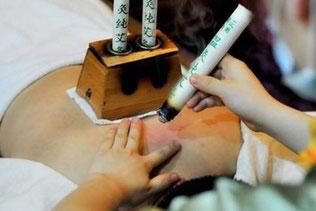 Moxa-Behandlung