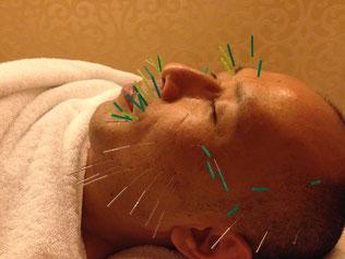 某美容鍼専門店で筆者自身が受けた美容鍼