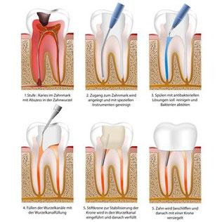 Endobehandlungen, Wurzelkanalbehandlungen, Zahnarztpraxis Dr. Bettina Seidl, Anger