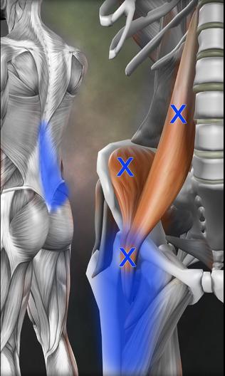 腸腰筋のトリガーポイント
