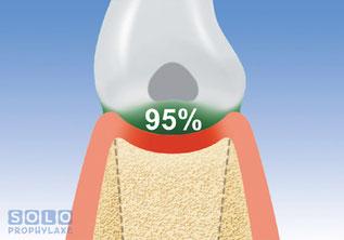 95% der Kariesverursachenden Baktierien befinden sich in den Zahnzwischenräumen Solo-Prophylaxe in der Zahnarztpraxis Berthold Pilsl in Garmisch - Partenkirchen © SOLO-med