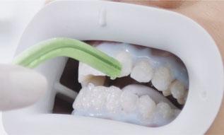 Bild: Bleaching, Praxis Dr. Jakob, Hamburg, weiße Zähne, Bleaching Kosten, Bleaching Beratung, Bleaching Ablauf