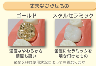 八戸市 くぼた歯科医院 セラミック 白い オススメ ホワイトニング