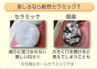 八戸市 くぼた歯科医院 セラミック ホワイトニング 金属アレルギー おすすめ