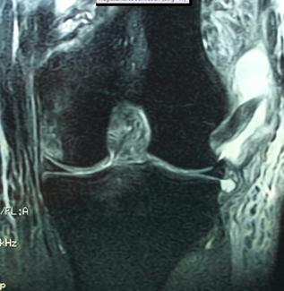 Abb.: Kompletter Riss des lateralen Kapselbandapparates (Multi-Ligamentverletzung inkl. der Kreuzbänder)