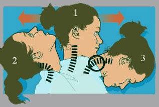 むちうち症、頸椎捻挫