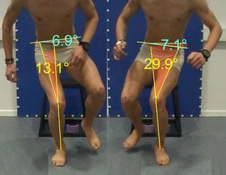 Beide Knie eines Menschen werden gefilmt beim Sprung von einem z. B. Hocker, dann wird mittels z. B. Winkel gezeigt, ob evtl. Defizite der Kniestabilität vorliegen, durch Übungen oder Versorgungen kann Abhilfe geschaffen werden, Verletzungsrisiko sinkt