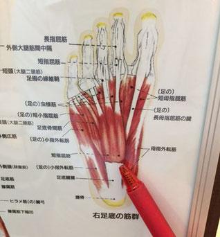 足裏の筋肉が重力によって伸びる事で痛みを発症します。