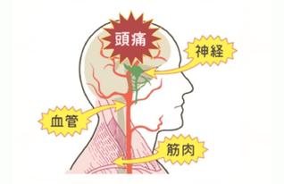 筋肉の張りやコリが神経や血管を圧迫して頭痛が発生します。