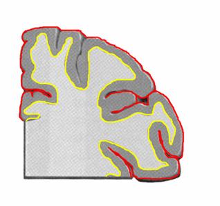 ヒト大脳皮質