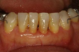 歯茎の下がった方の矯正治療