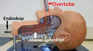 Die Verwendung eines kurzen Overtubes zur Schienung von Pharynx und oralem Ösophagus macht die endoskopische Platzierung von offen-poren Schaumdrainagen einfacher und erhöht die Patientensicherheit. Die anatomischen Bedingungen werden im Modell deutlich.
