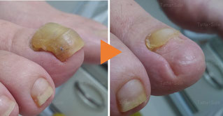 爪甲鉤彎症ケア