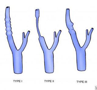 Types of fibromuscular dysplasia (FMD), type I, type II, type III