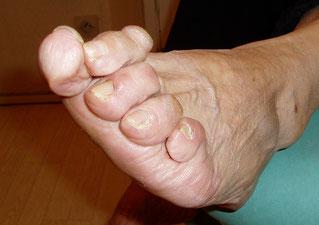 Griffes et chevauchement des orteils