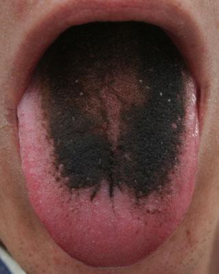 Zungenbelag