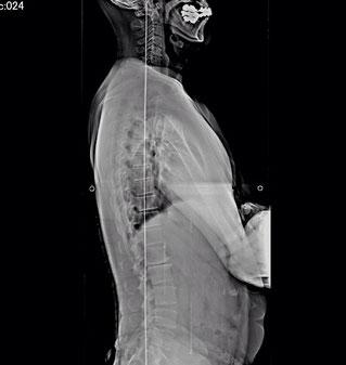 横から見ると分かる脊椎の湾曲