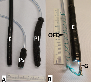 Openpore drainages: short and long open-pore polyurethane-foam drainages (OPD) and small-bore openpore film drainage (OFD).