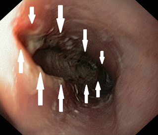 long ruptur of esophagus
