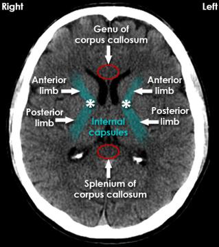 Genu of corpus callosum, Splenium of corpus collosum, Internal capsules (posterior + anterior limb)