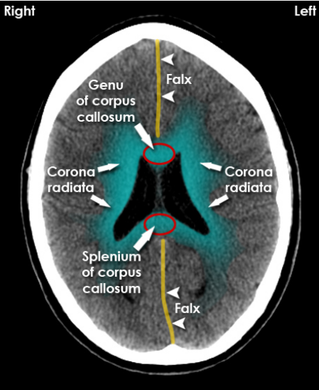 Falx, Genu corpus callosum, Splenium corpus callosum, corona radiata