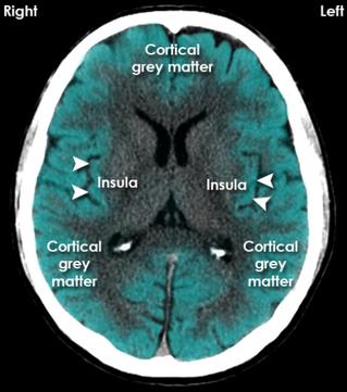 Cortical grey matter, Insula
