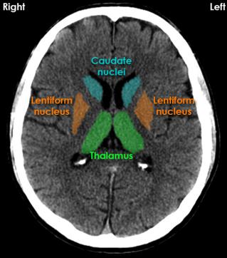 Caudate nuclei, Lentiform nuclei, Thalamus