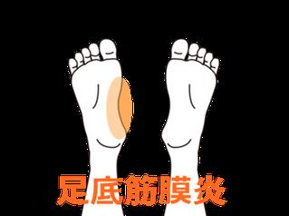 歩き初めが痛い足底筋膜炎